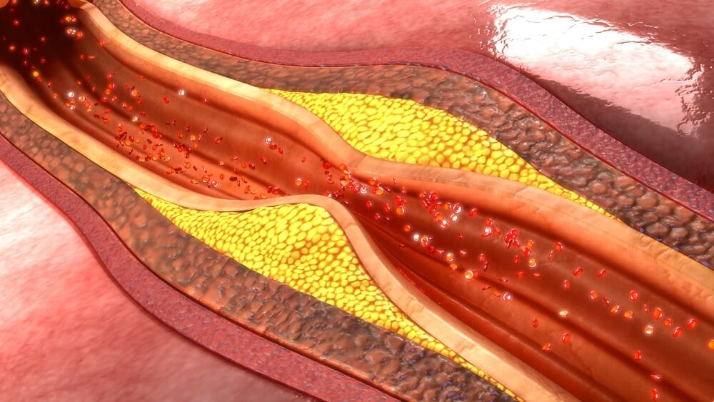 Clogged Arteries? What Can You Do About It?