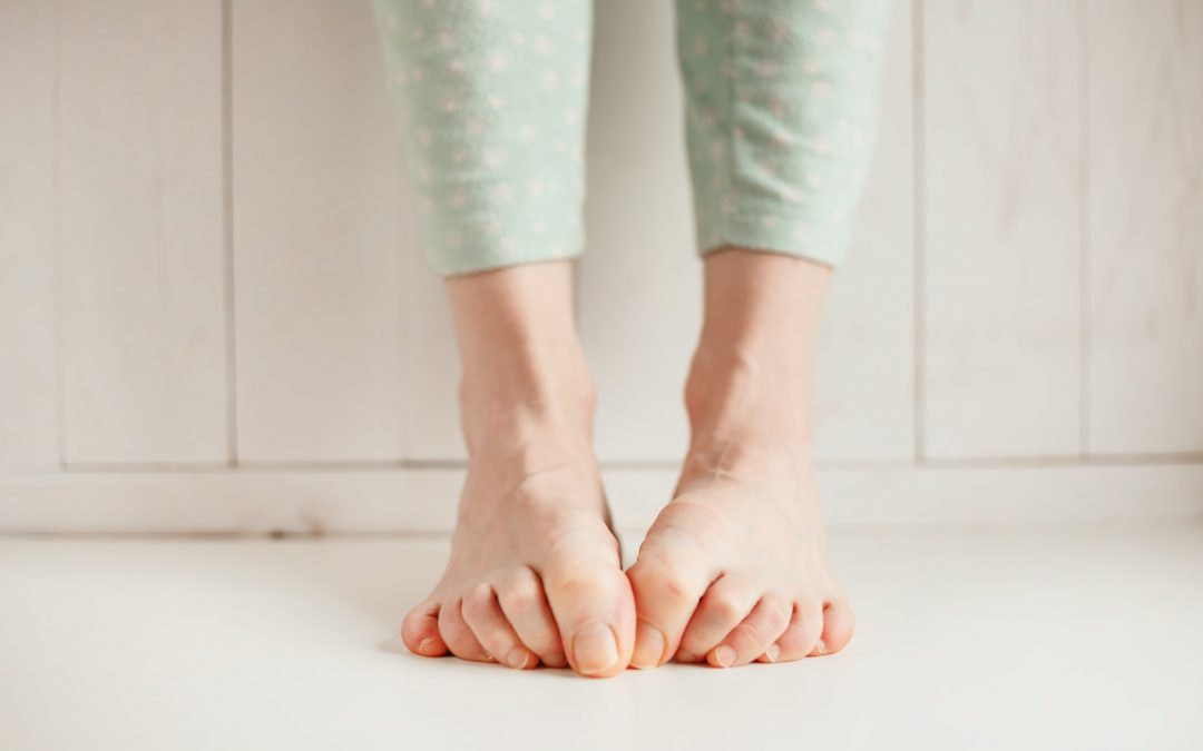 Circulation, Varicose Veins, and Your Heart: How Are They Connected?